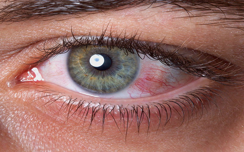 Dry Eye Syndrome Parenting Children Eye Study