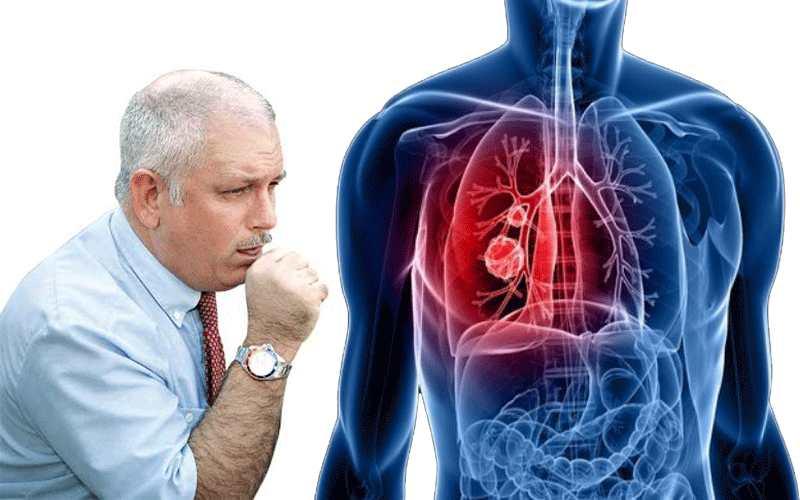 Tuberculosis Symptoms in Men