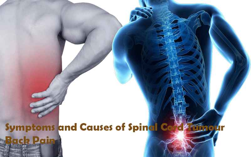 Symptoms and Causes of Spinal Cord Tumour Back Pain