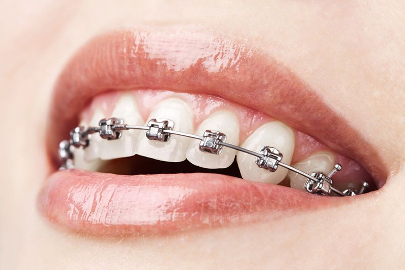 Should You Consider Wearing Retainers After Orthodontic Treatment