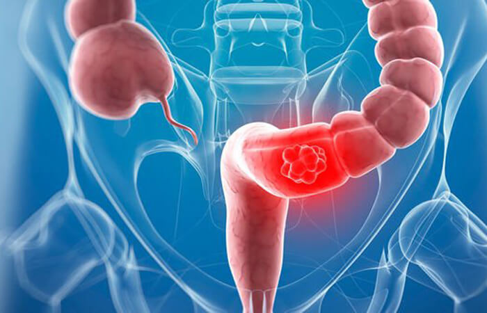 Bacteria Inside The Gut May Cause Bowel Cancer Health Perfect Info