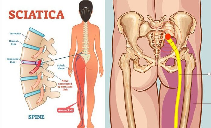Daily Habits That Cause Sciatica