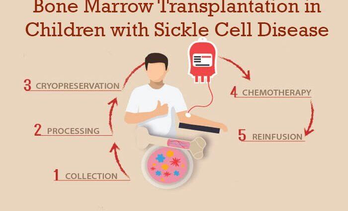 Bone Marrow Transplantation in Children