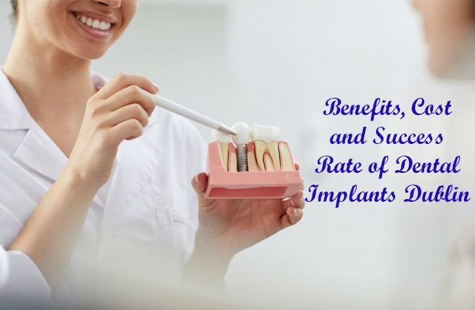 Dental Implants Dublin
